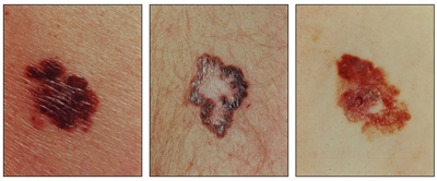 Photographs showing a large, asymmetrical, red and brown lesion on the skin (panel 1); a brown lesion with a large and irregular border on the skin (panel 2); and a large, asymmetrical, scaly, red and brown lesion on the skin (panel 3).