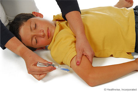 Pinching a fold of skin at the injection site