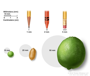 Drawing shows different sizes of common items in millimeters (mm): a sharp pencil point (1 mm), a new crayon point (2 mm), a pencil-top eraser (5 mm), a pea (10 mm), a peanut (20 mm), and a lime (50 mm). Also shown is a 2-centimeter (cm) ruler that shows 10 mm is equal to 1 cm.