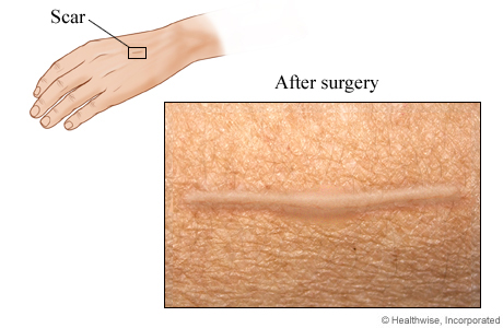 Scar after excision for melanoma