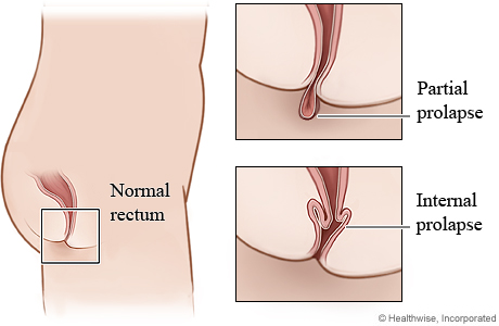 Rectal prolapse: partial and internal