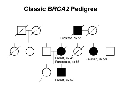 Pedigree showing some of the classic features of a family with a deleterious BRCA2 mutation across three generations, including transmission occurring through maternal and paternal lineages. The unaffected female proband is shown as having an affected brother (breast cancer diagnosed at age 52 y), mother (breast cancer diagnosed at age 45 y and pancreatic cancer diagnosed at age 55 y), maternal aunt (ovarian cancer diagnosed at age 58 y), and maternal grandfather (prostate cancer diagnosed at age 55 y).