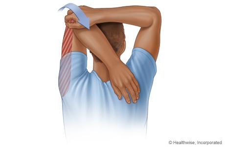 Triceps stretch