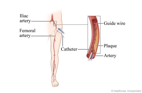 Location of the iliac artery, with detail of the catheter and guide wire inserted in the artery