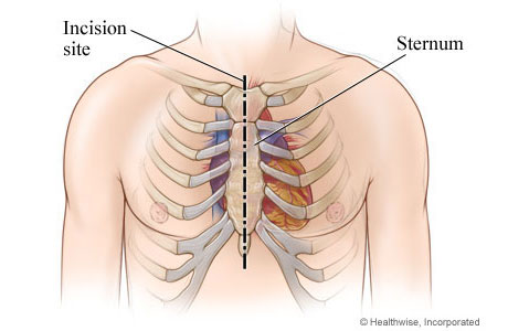 Location of incision in chest