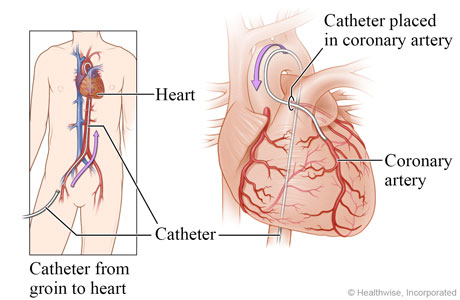 Catheter going from groin to heart, with detail of catheter in a coronary artery