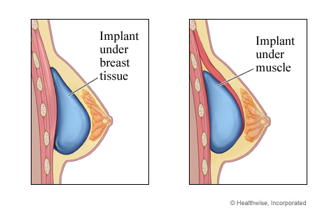 Breast implant under breast tissue and implant under muscle