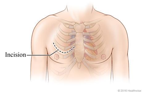 Chest incision site across chest between two ribs.