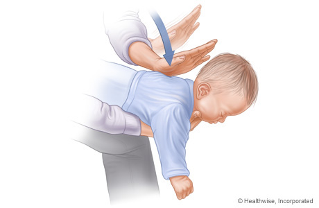 Picture C: Position of baby on arm for Heimlich maneuver, showing position and direction of back slaps