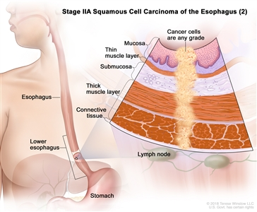 Stage IIA squamous cell carcinoma of the esophagus (2); drawing shows the esophagus, including the lower part of the esophagus, and the stomach. An inset shows cancer cells of any grade in the mucosa layer, thin muscle layer, submucosa layer, thick muscle layer, and connective tissue layer of the lower esophagus wall. The lymph nodes are also shown.